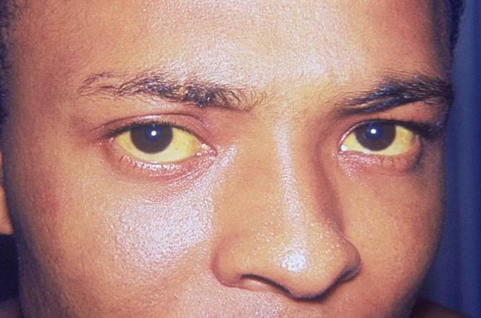 "Zdroj: ""Jaundice eye"" od Photo Credit:Content Providers(s): CDC/Dr. Thomas F. Sellers/Emory University"